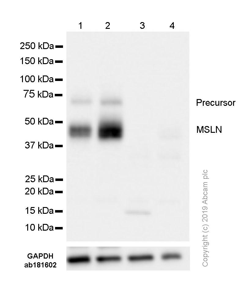 Western blot - Anti-Mesothelin antibody [SP74] (ab93620)