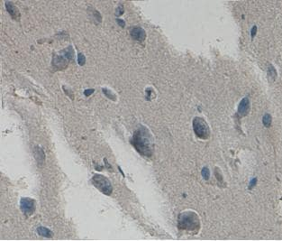 Immunohistochemistry (Formalin/PFA-fixed paraffin-embedded sections) - Anti-HYAL2 antibody (ab93651)