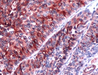 Immunohistochemistry (Formalin/PFA-fixed paraffin-embedded sections) - Anti-Uroplakin III antibody [SP73] (ab93721)