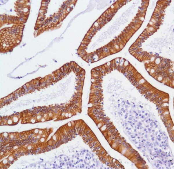 Immunohistochemistry (Formalin/PFA-fixed paraffin-embedded sections) - Anti-ErbB 3 antibody [SP71] (ab93739)