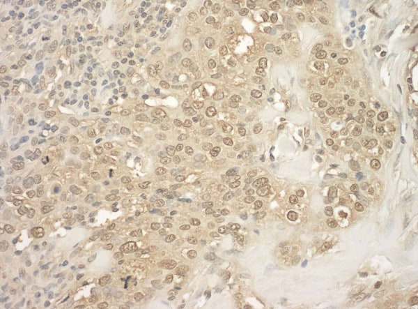 Immunohistochemistry (Formalin/PFA-fixed paraffin-embedded sections) - Anti-PRAK/MK5 antibody (ab93800)