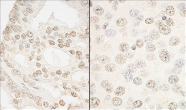 Immunohistochemistry (Formalin/PFA-fixed paraffin-embedded sections) - Anti-FOXP1 antibody (ab93807)