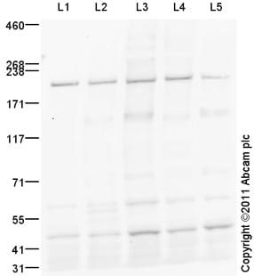 Western blot - Anti-TIAM2 antibody (ab93839)