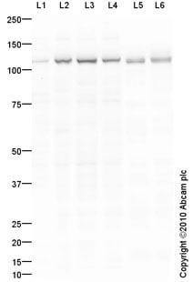 Western blot - Anti-CD103 antibody (ab93848)