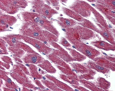 Immunohistochemistry (Formalin/PFA-fixed paraffin-embedded sections) - Anti-LPA-3 antibody (ab93905)