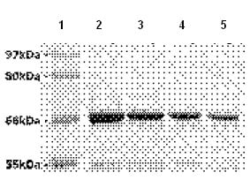 SDS-PAGE - Recombinant Rat Progerin protein (ab93917)