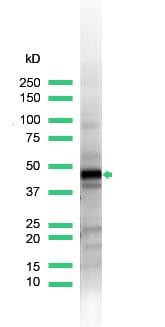 Western blot - Anti-Cytokeratin 17 antibody (ab93961)
