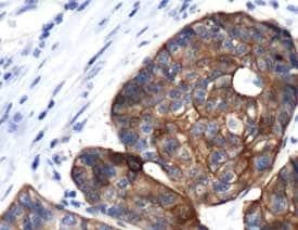 Immunohistochemistry (Formalin/PFA-fixed paraffin-embedded sections) - Anti-Cytokeratin 17 antibody (ab93961)