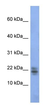 Western blot - Anti-Ribonuclease A antibody (ab94417)