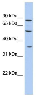 Western blot - Anti-FAM63A antibody (ab94443)