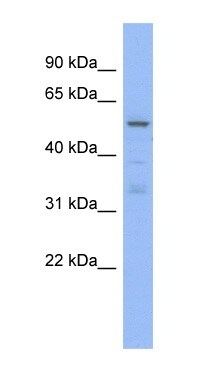 Western blot - Anti-TRIM5 alpha antibody (ab94470)