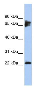 Western blot - Anti-Calcineurin B/CNB antibody (ab94535)