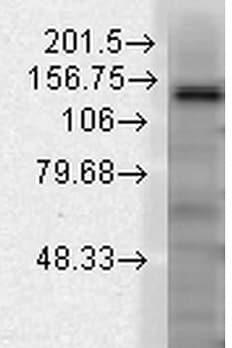 Western blot - Anti-KCNT1/SLACK antibody [N3/26] (ab94578)