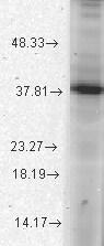 Western blot - Anti-Thorase antibody [N125/10] (ab94583)