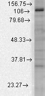 Western blot - Anti-KCNU1 antibody [N2/16] - C-terminal (ab94586)