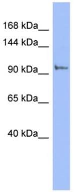 Western blot - Anti-PI4 kinase beta antibody (ab94604)