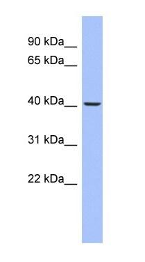 Western blot - Anti-PKA beta (catalytic subunit) antibody (ab94612)