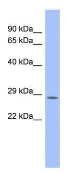 Western blot - Anti-PSMB10 antibody (ab94623)