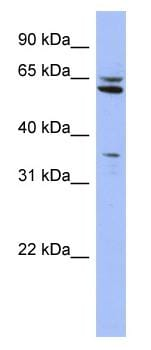 Western blot - Anti-HIF Prolyl Hydroxylases antibody (ab94626)