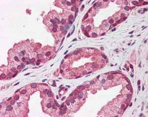 Immunohistochemistry (Formalin/PFA-fixed paraffin-embedded sections) - Anti-Pentraxin 3 antibody (ab94649)