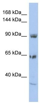 Western blot - Anti-TPC1 antibody - N-terminal (ab94731)