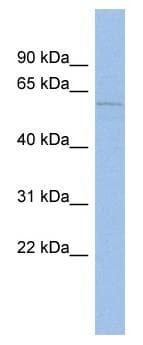 Western blot - Anti-Mucolipin 3 antibody (ab94732)