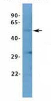 Western blot - Anti-ASIC1 antibody - N-terminal (ab94753)