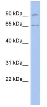 Western blot - Anti-CalDAG-GEFI antibody (ab94865)