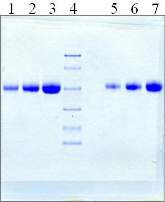 SDS-PAGE - Native Human Alpha 1 Acid Glycoprotein/AGP (ab94943)