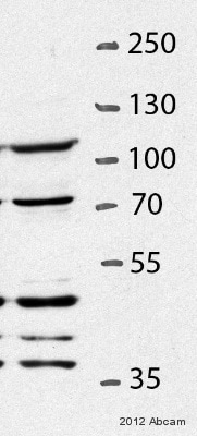 Western blot - Anti-EXOSC10/RRP6 antibody (ab95028)