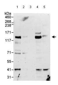 Western blot - Anti-4E-T antibody (ab95030)
