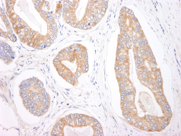 Immunohistochemistry (Formalin/PFA-fixed paraffin-embedded sections) - Anti-4E-T antibody (ab95030)