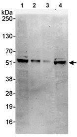 Western blot - Anti-PYGO1 antibody (ab95072)