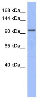 Western blot - Anti-MSH4 antibody (ab95096)