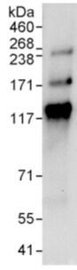 Immunoprecipitation - Anti-FAN1 antibody (ab95171)