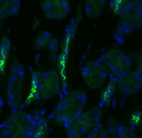 Immunocytochemistry/ Immunofluorescence - Anti-SLC12A3 antibody (ab95302)