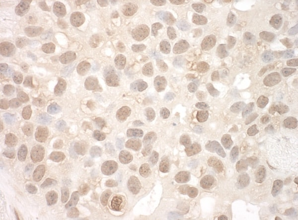 Immunohistochemistry (Formalin/PFA-fixed paraffin-embedded sections) - Anti-EYA2 antibody (ab95875)