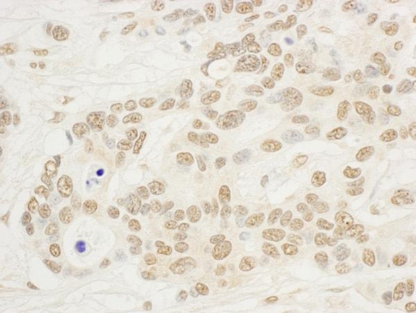 Immunohistochemistry (Formalin/PFA-fixed paraffin-embedded sections) - Anti-NOL8 antibody (ab95898)