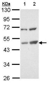 Western blot - Anti-TSPYL1 antibody (ab95943)