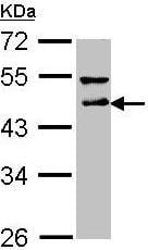 Western blot - Anti-DLST antibody (ab95946)