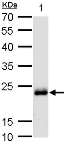 Western blot - Anti-Rab-6 antibody (ab95954)