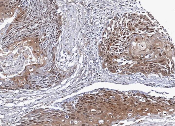Immunohistochemistry (Formalin/PFA-fixed paraffin-embedded sections) - Anti-NSFL1C antibody (ab95963)
