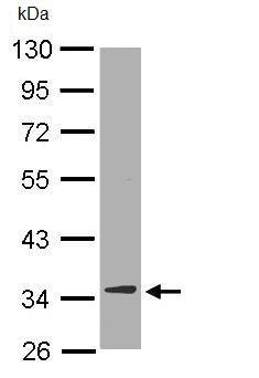 Western blot - Anti-DECR1 antibody (ab95965)