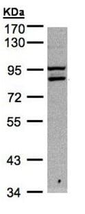 Western blot - Anti-FASTKD1 antibody (ab95968)