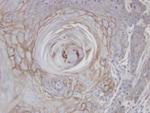 Immunohistochemistry (Formalin/PFA-fixed paraffin-embedded sections) - Anti-MAN1B1 antibody (ab95975)