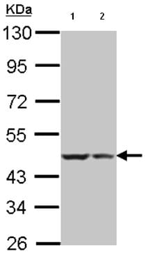 Western blot - Anti-BRCC45 antibody (ab95984)