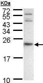 Western blot - Anti-APRT antibody (ab96025)
