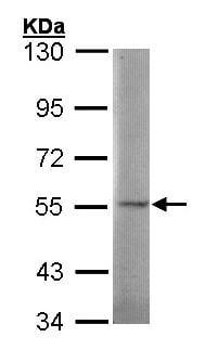 Western blot - Anti-SGSH/HSS antibody (ab96030)