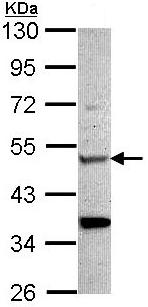 Western blot - Anti-CHIT1 antibody (ab96045)