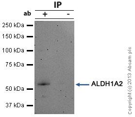 Immunoprecipitation - Anti-ALDH1A2 antibody (ab96060)